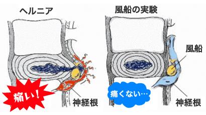 椎間板ヘルニア風船実験のイラスト
