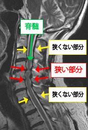 椎間板ヘルニアや脊柱管狭窄症などの脊椎内視鏡下手術 19,000件以上の実績