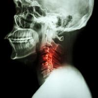 頚椎 脊柱 管 狭窄 症