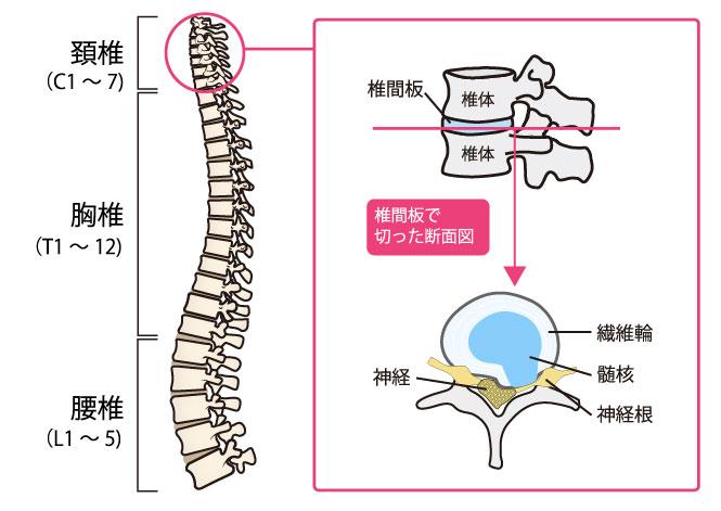 頚椎 椎間板 ヘルニア 頚椎椎間板ヘルニアについて メディカルノート
